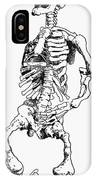 Rickets IPhone Case