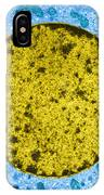 Tem Of Leydig Cell IPhone Case