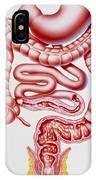 Artwork Of Crohn's Disease And Ulcerative Colitis IPhone Case