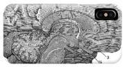 Brain Cross-section IPhone Case