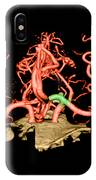 Ct Angiogram Of Aneurysm IPhone Case