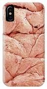 Human Skin, Sem IPhone Case