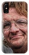Ron IPhone Case