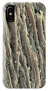 Spinal Cord, Sem IPhone Case