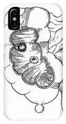 Diverticulitis IPhone Case