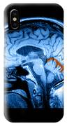Mri Of Alcoholism Related Vermian IPhone Case