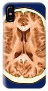 Normal Cross Sectional Mri Of The Brain IPhone Case