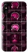 Mri Of Normal Brain IPhone Case