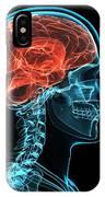 Head Anatomy, Artwork IPhone Case