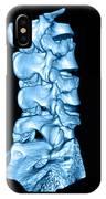 3d Ct Of Lumbar Spine IPhone Case