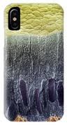 Tooth Enamel Formation, Sem IPhone Case