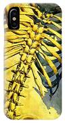 Torso Skeleton IPhone Case