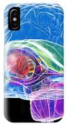 Brain Anatomy, Artwork IPhone Case