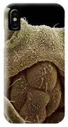 Aphid Head, Sem IPhone Case
