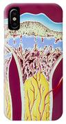Artwork Of Rickets In Tibia And Fibula Bones IPhone Case