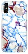 Black Scab Infection, Light Micrograph IPhone Case