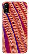 Clam's Gill, Sem IPhone Case