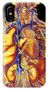 Colour Artwork Of Abdominal & Thoracic Nerves IPhone Case