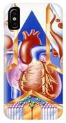 High Blood Pressure, Artwork IPhone Case