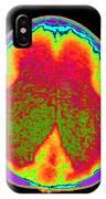 Hydrocephalus Ct Scan IPhone Case