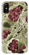 Intestinal Blood Vessels, Sem IPhone Case