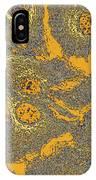Keratinocyte Skin Cells, Light Micrograph IPhone Case