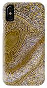 Lily Flower Ovary, Light Micrograph IPhone Case