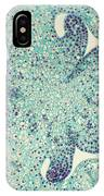 Lily Ovary Lm IPhone Case