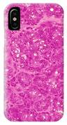 Mammary Gland Lm IPhone Case