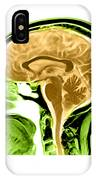Sagittal View Of An Mri Of The Brain IPhone Case