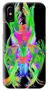 Brain Fiber Tracts, Dti Scan IPhone Case