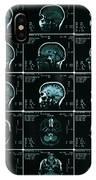 Mri Of Normal Brain IPhone Case