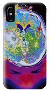 Brain Malfunction IPhone Case
