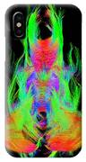 Fiber Tracts Of The Brain, Dti IPhone Case