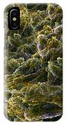 Fractal Under The Microscope IPhone Case