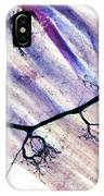 Muscle Motor Neurones, Light Micrograph IPhone Case