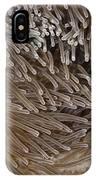 Sea Anemone Closeup IPhone Case
