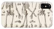 Skeletons IPhone Case