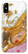 The Golden Flow Of Love And Determination IPhone Case
