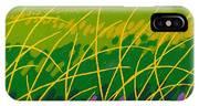Wicklow Meadow Ireland IPhone Case