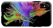 White Matter Fibres Of The Human Brain IPhone X Tough Case