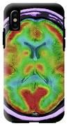 Normal Brain Blood Flow IPhone X Tough Case