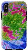 False-colour Tem Of Lymphocyte Undergoing Mitosis IPhone X Tough Case