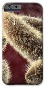 Microscopic View Of Paramecium IPhone Case by Stocktrek Images