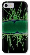 Tem Of Escherichia Coli IPhone Case by Kwangshin Kim
