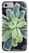 Calcium Phosphate Crystal, Sem IPhone Case