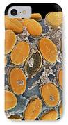 Diatom Algae, Sem IPhone Case by Steve Gschmeissner