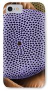 Diatoms, Sem IPhone Case by Steve Gschmeissner