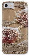 Dividing Cancer Cell, Sem IPhone Case by Steve Gschmeissner
