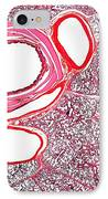 Lung Tissue, Light Micrograph IPhone Case by Dr Keith Wheeler